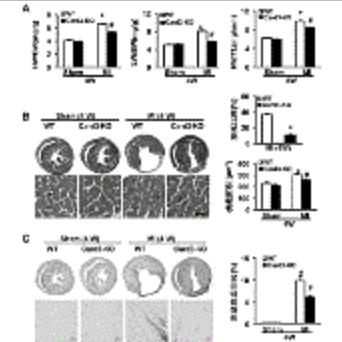 Caspase 激活及募集结合域 3(Card3)基因在冠状动脉粥样硬化性 心脏病中的功能和应用