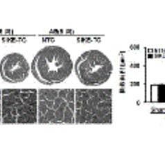 IκB 激酶 ε 抑制剂(SIKE)在治疗心肌肥厚中的功能及应用