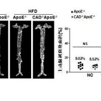 核苷酸合成酶 CAD 在治疗动脉粥样硬化中的功能和应用