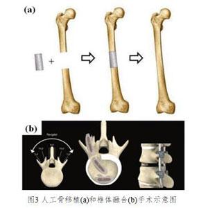 高力学性能形状记忆聚氨酯及智能骨科器械